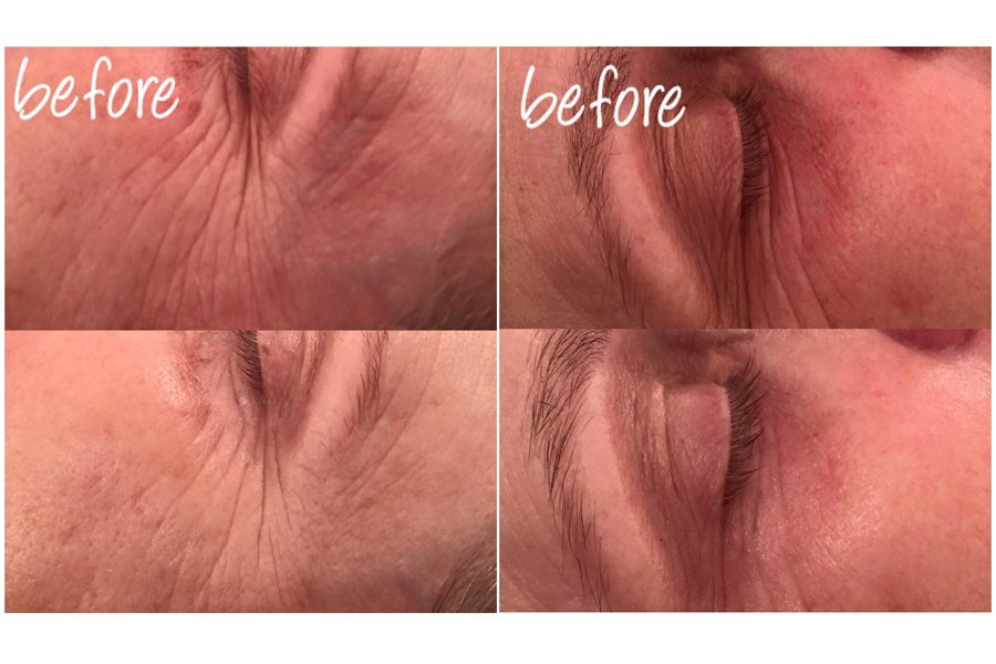 before & afters - collagen power facial copy